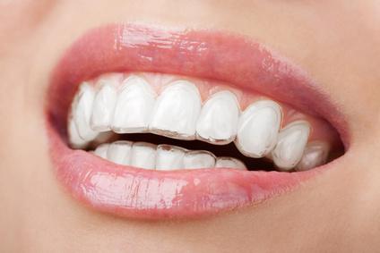 wybielanie zębów lampą zoom